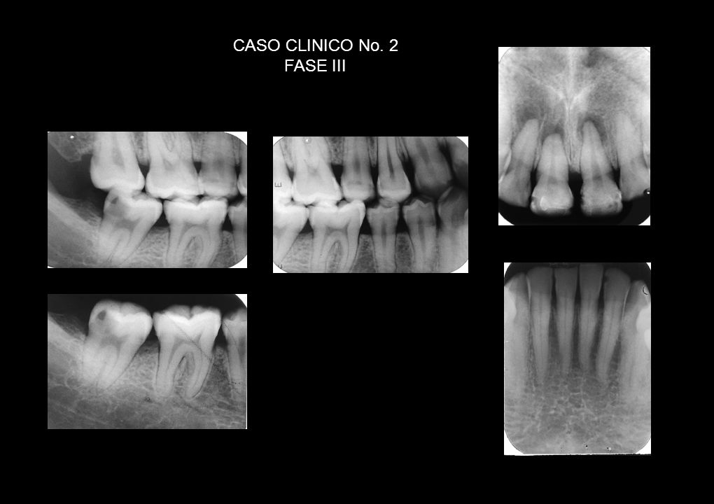 CASO CLINICO No. 2 FASE III