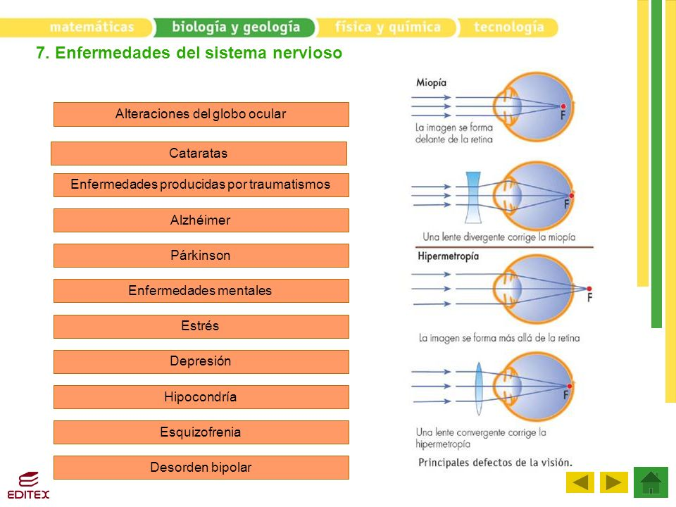 7. Enfermedades del sistema nervioso