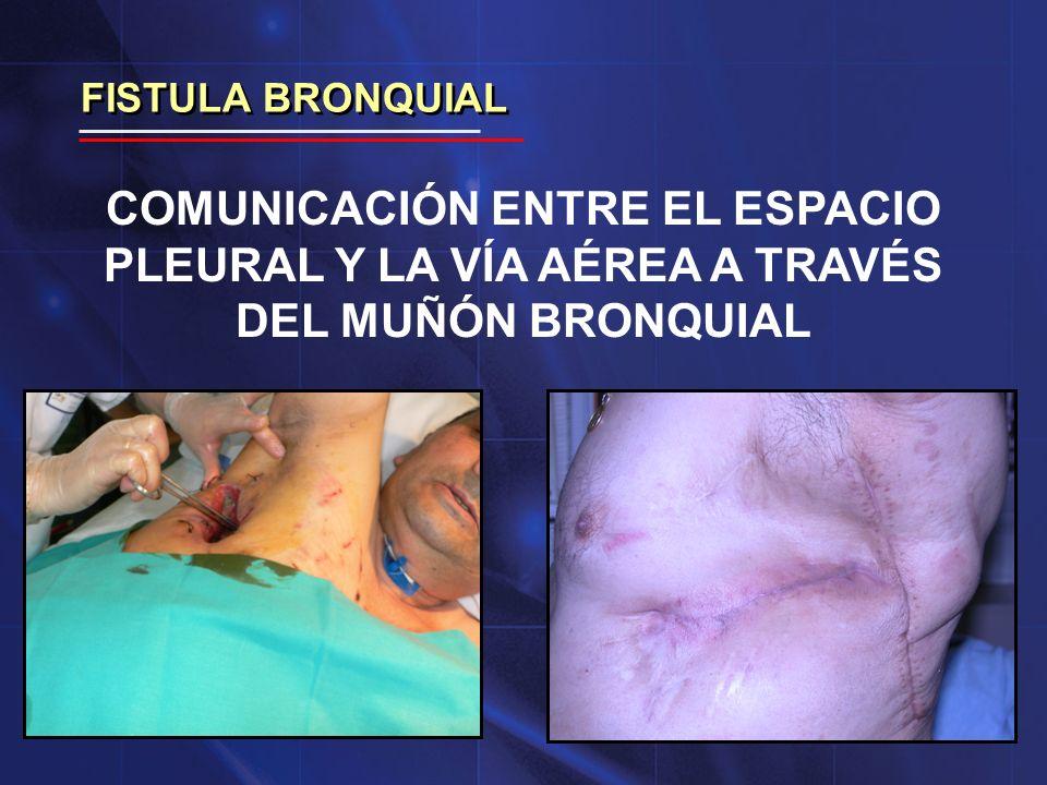 FISTULA BRONQUIAL COMUNICACIÓN ENTRE EL ESPACIO PLEURAL Y LA VÍA AÉREA A TRAVÉS DEL MUÑÓN BRONQUIAL.