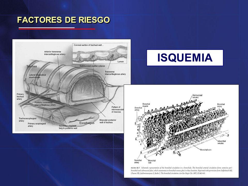 ISQUEMIA FACTORES DE RIESGO