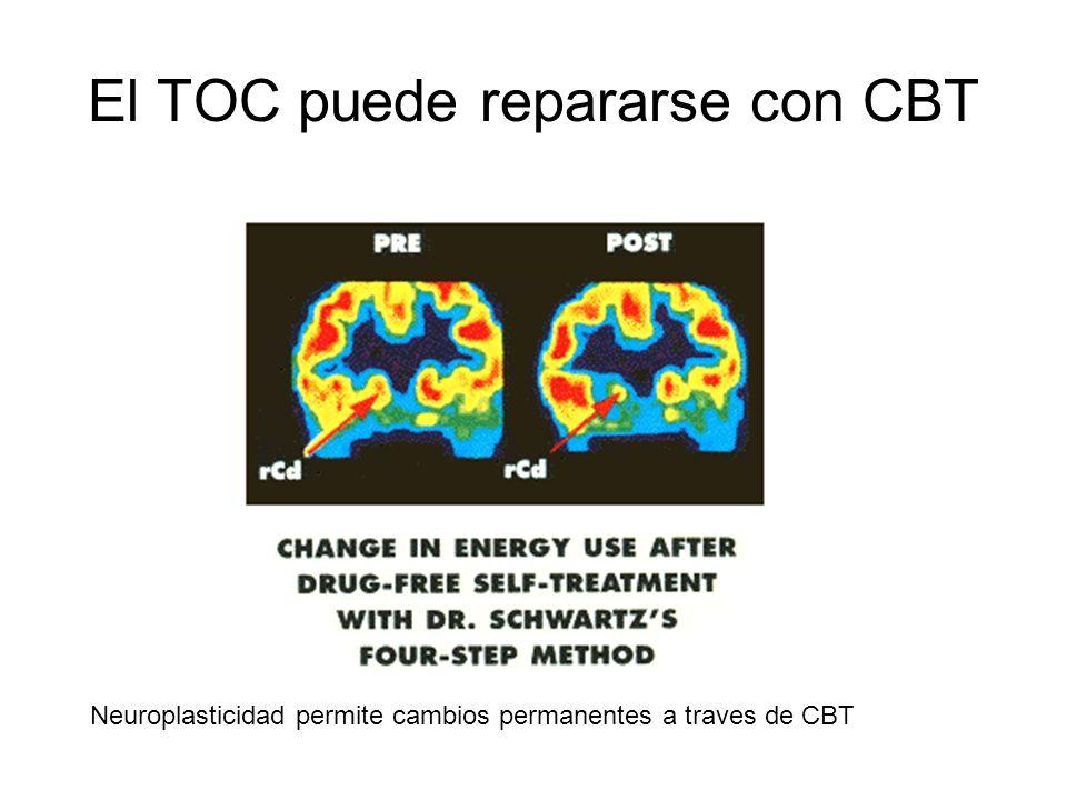 El TOC puede repararse con CBT