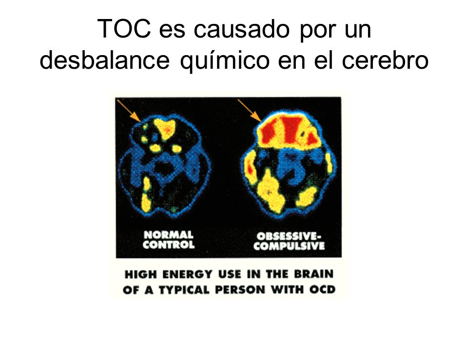 TOC es causado por un desbalance químico en el cerebro