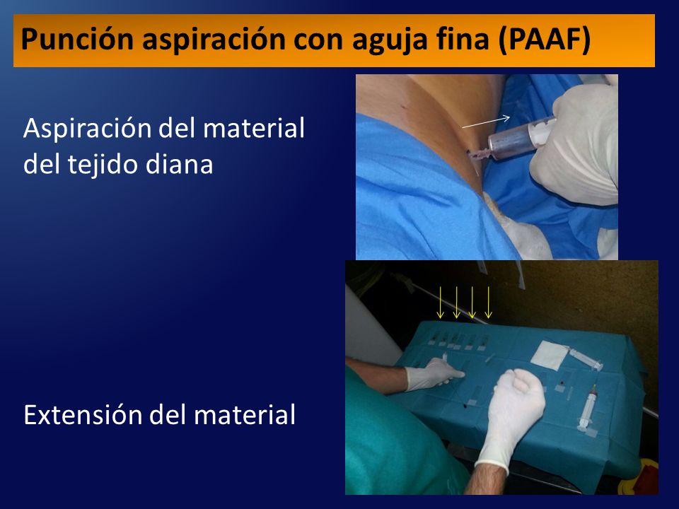 Punción aspiración con aguja fina (PAAF)