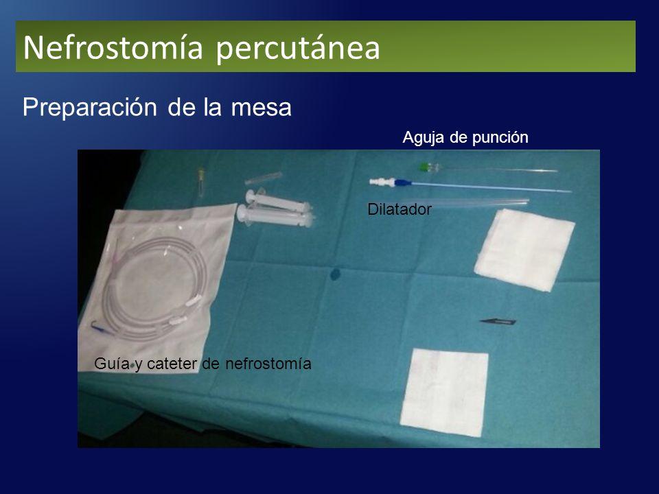 Nefrostomía percutánea