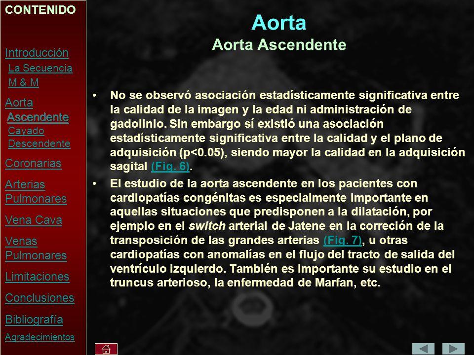 Aorta Aorta Ascendente