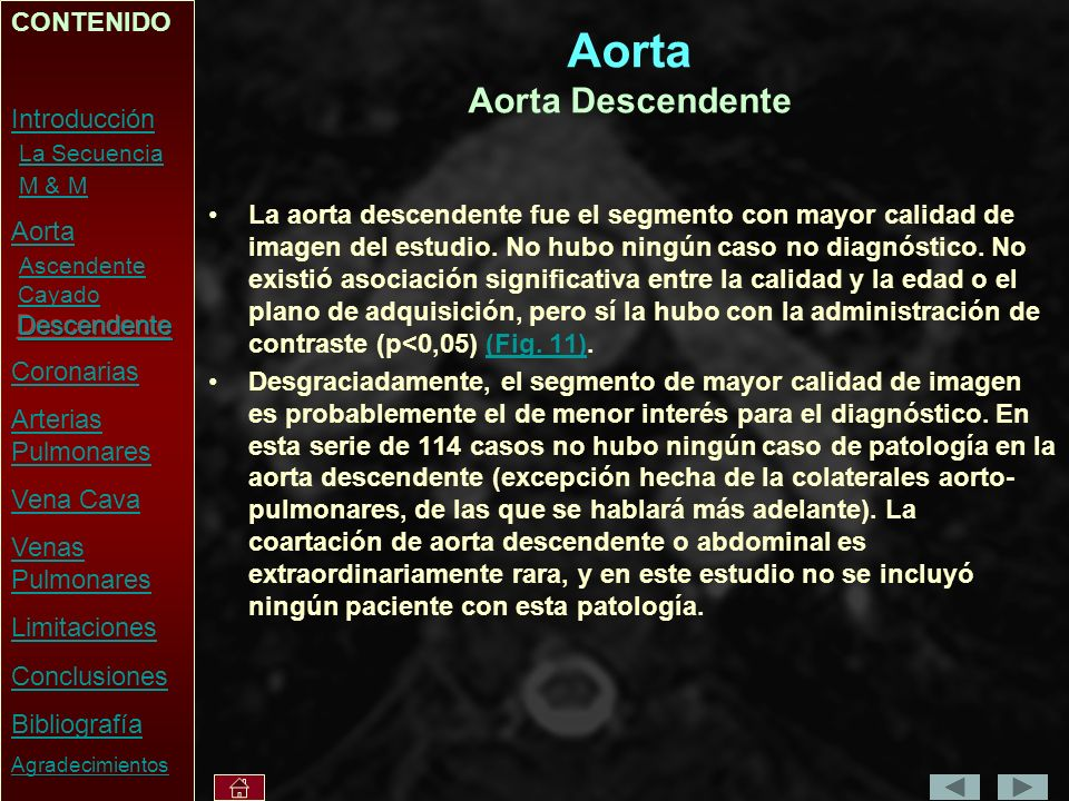 Aorta Aorta Descendente