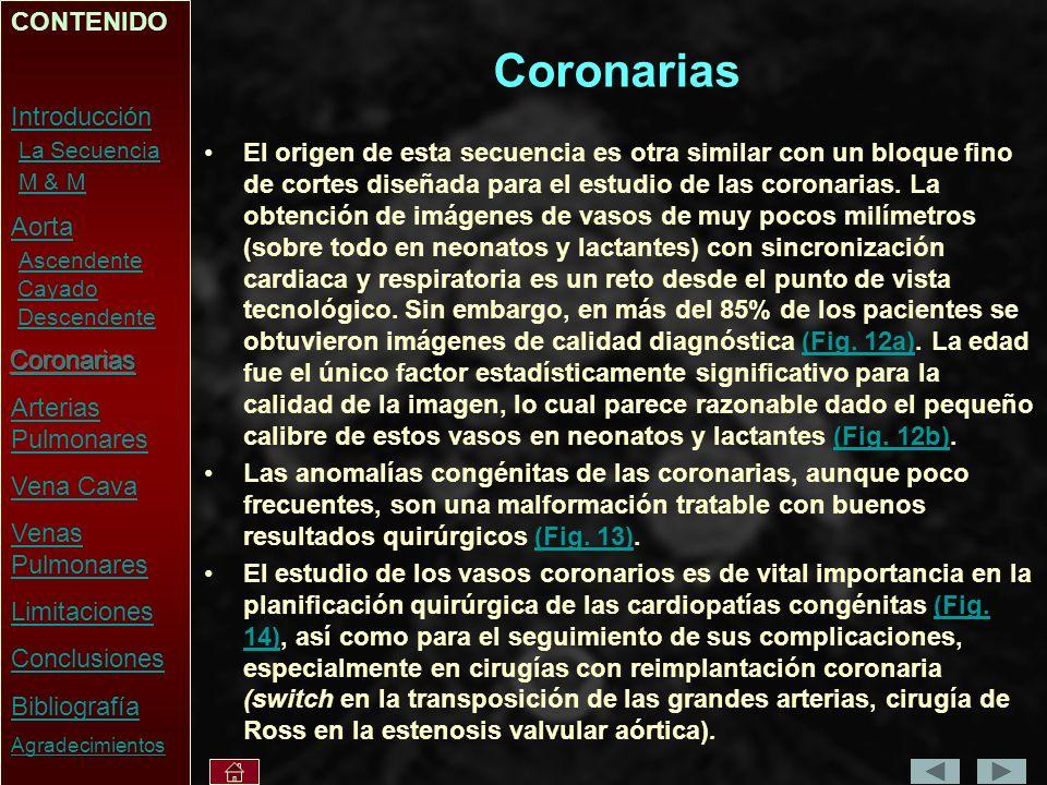Coronarias CONTENIDO Introducción La Secuencia M & M Aorta Ascendente