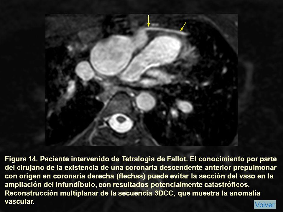 Figura 14. Paciente intervenido de Tetralogía de Fallot
