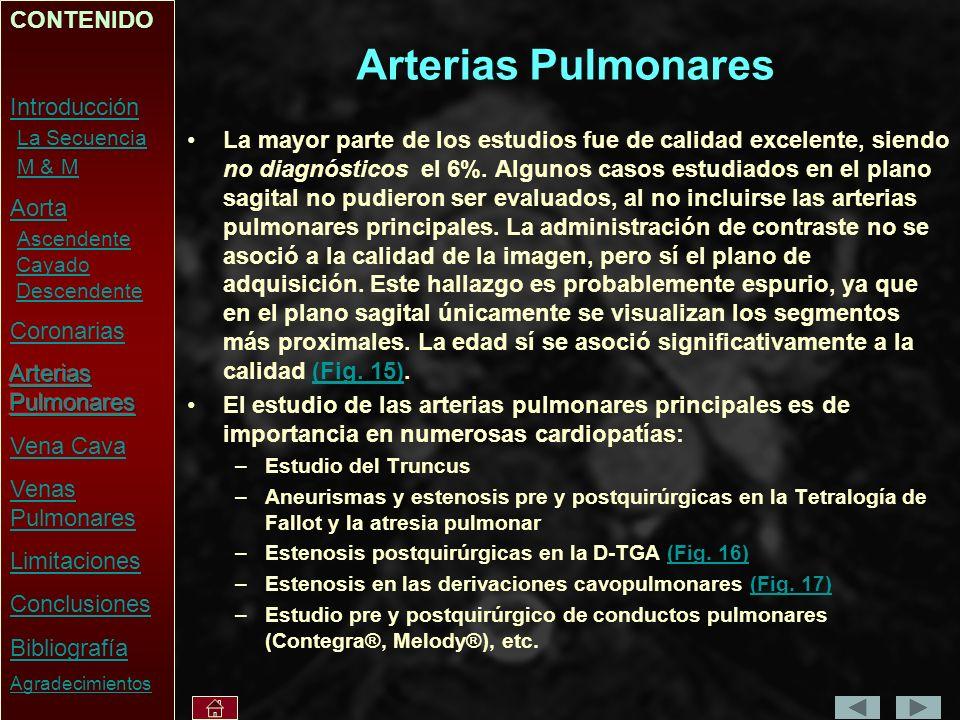 Arterias Pulmonares CONTENIDO Introducción La Secuencia M & M Aorta
