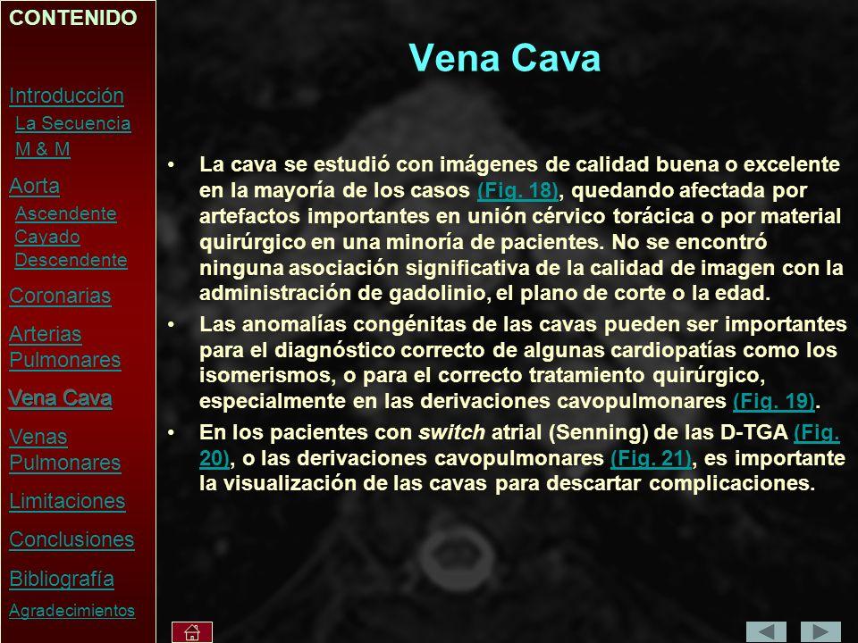 Vena Cava CONTENIDO Introducción La Secuencia M & M Aorta Ascendente