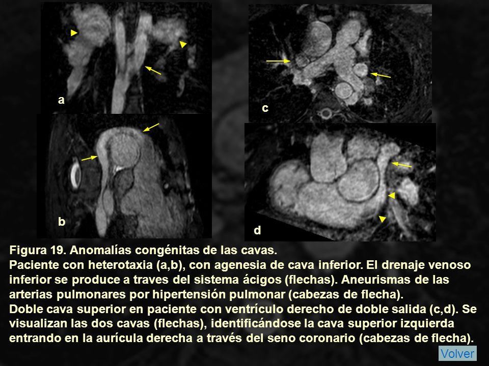 a c. b. d. Figura 19. Anomalías congénitas de las cavas.