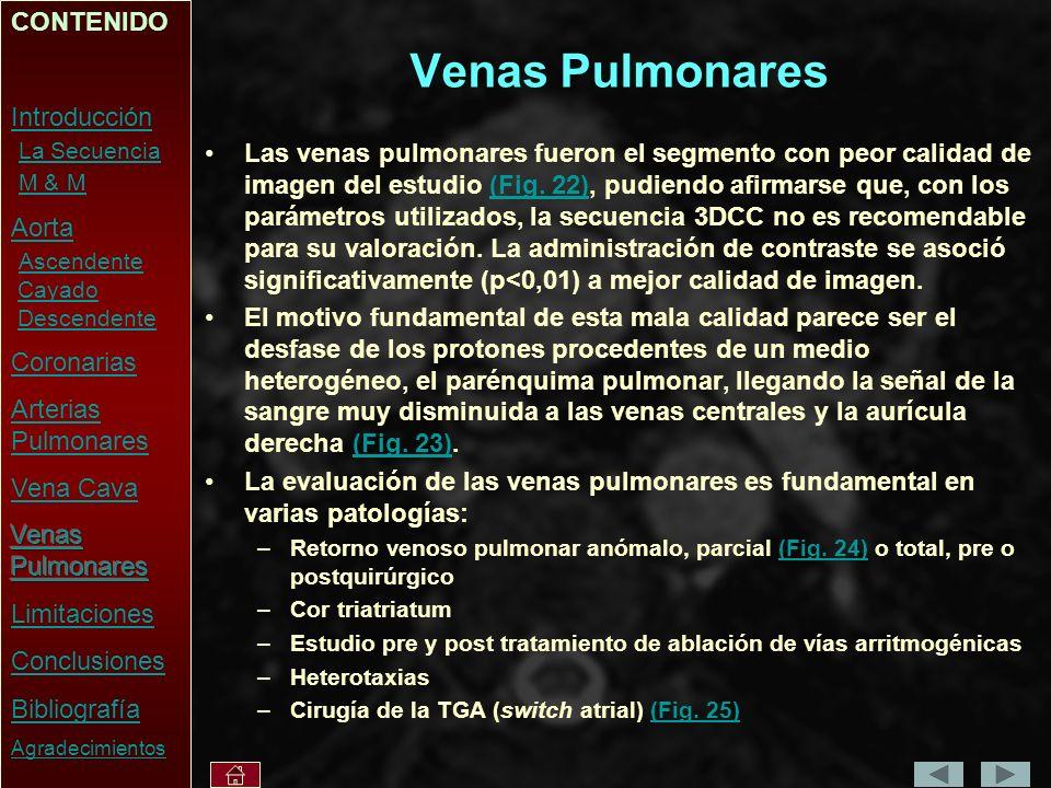 Venas Pulmonares CONTENIDO Introducción La Secuencia M & M Aorta