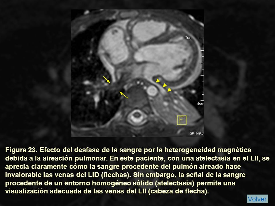 Figura 23. Efecto del desfase de la sangre por la heterogeneidad magnética debida a la aireación pulmonar. En este paciente, con una atelectasia en el LII, se aprecia claramente cómo la sangre procedente del pulmón aireado hace invalorable las venas del LID (flechas). Sin embargo, la señal de la sangre procedente de un entorno homogéneo sólido (atelectasia) permite una visualización adecuada de las venas del LII (cabeza de flecha).