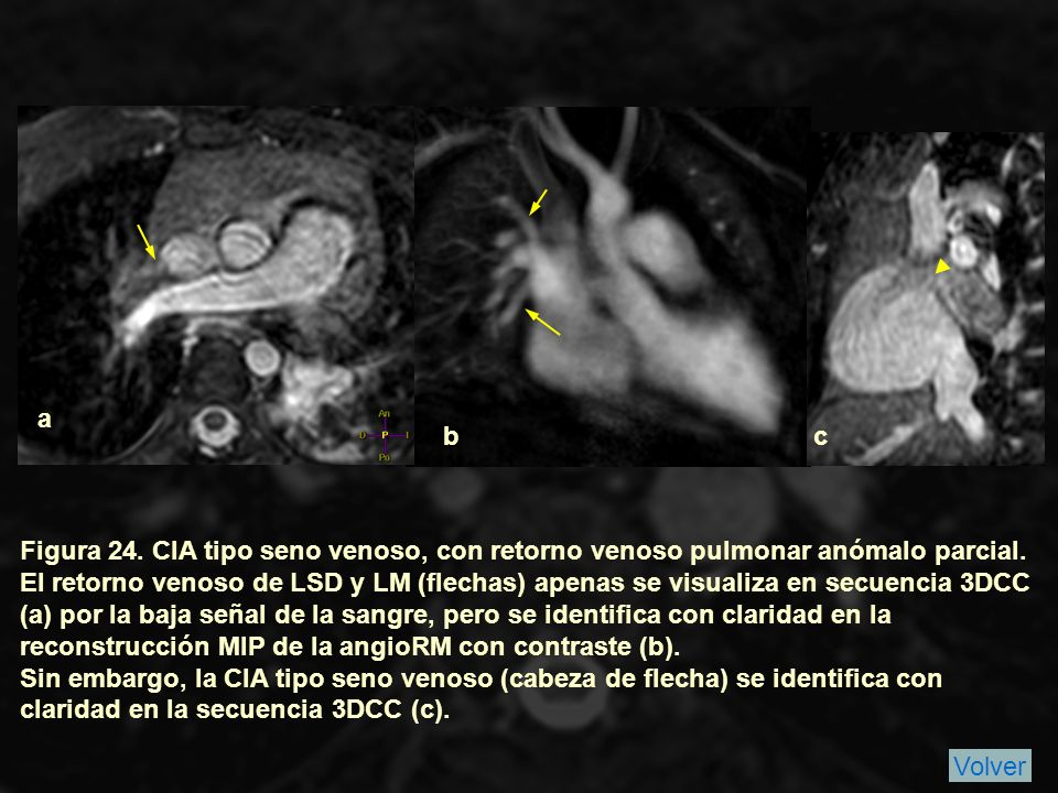 a b. c. Figura 24. CIA tipo seno venoso, con retorno venoso pulmonar anómalo parcial.