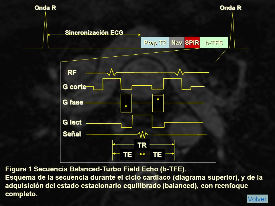 Figura 1 Secuencia Balanced-Turbo Field Echo (b-TFE).