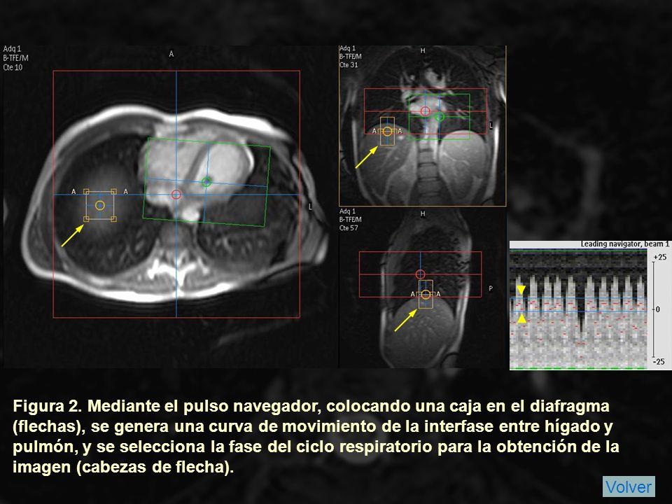 Figura 2. Mediante el pulso navegador, colocando una caja en el diafragma (flechas), se genera una curva de movimiento de la interfase entre hígado y pulmón, y se selecciona la fase del ciclo respiratorio para la obtención de la imagen (cabezas de flecha).