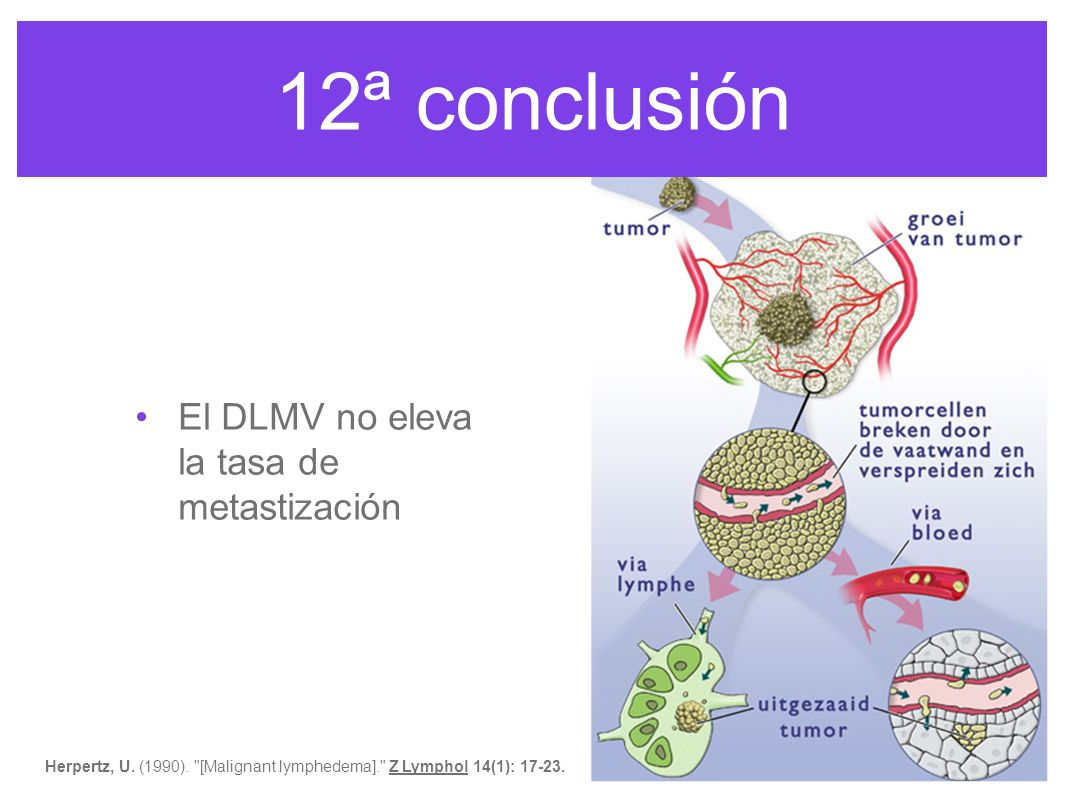 12ª conclusión El DLMV no eleva la tasa de metastización Mac Neely