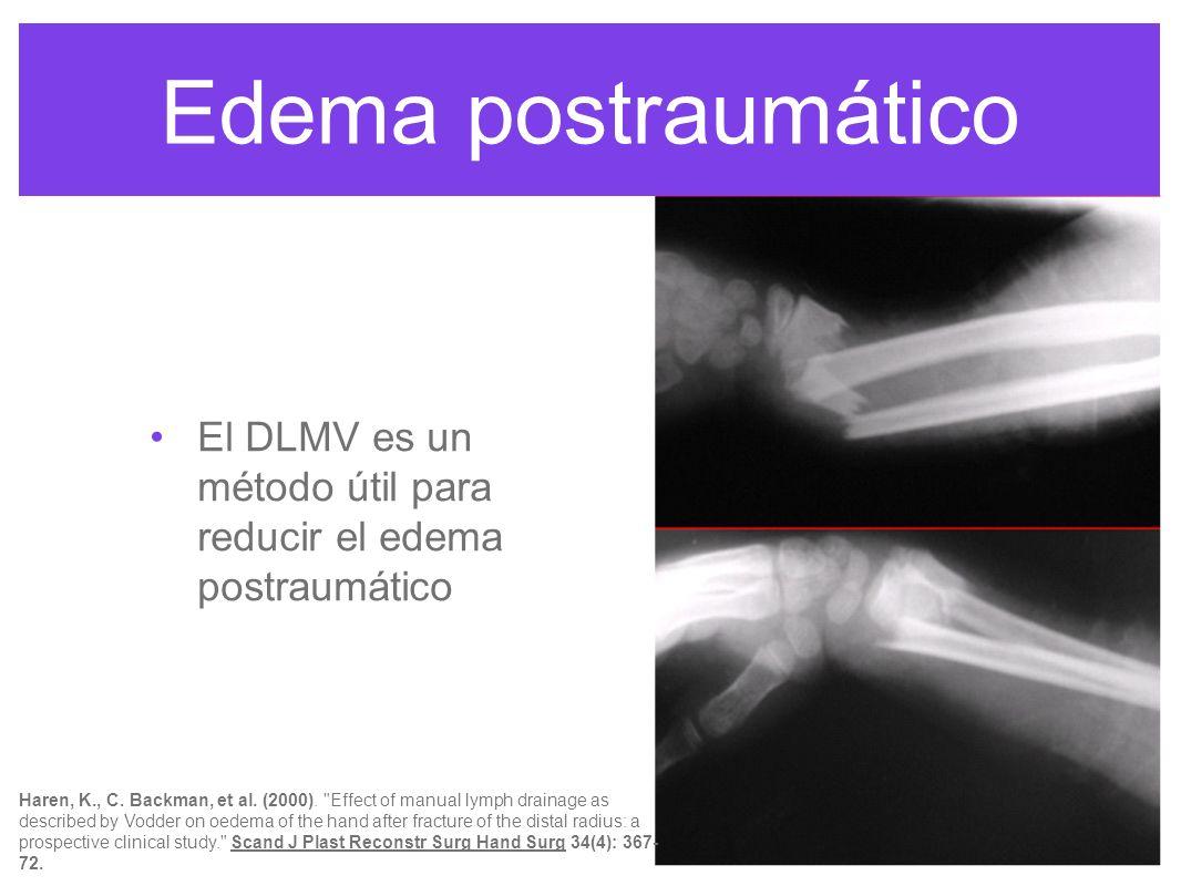 Edema postraumático El DLMV es un método útil para reducir el edema postraumático.