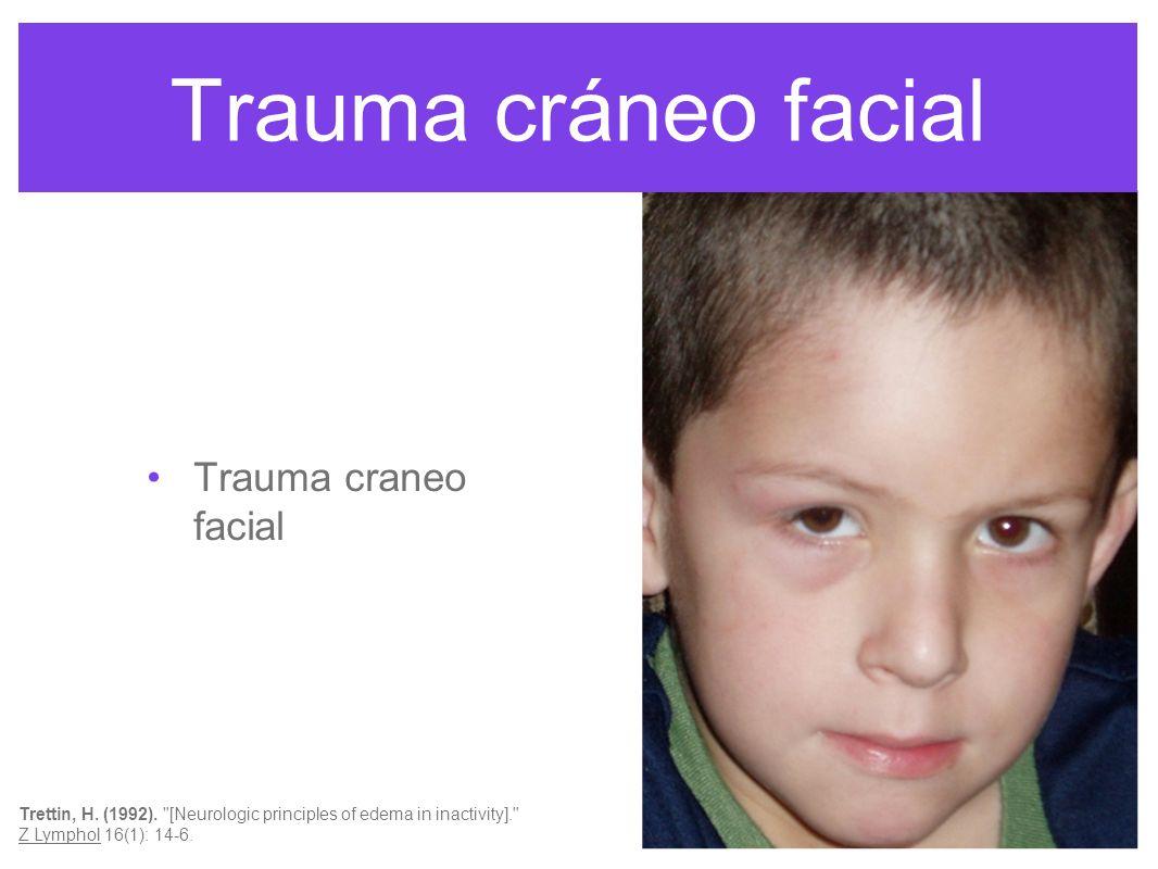 Trauma cráneo facial Trauma craneo facial