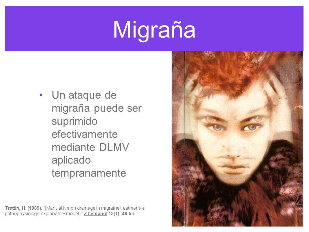 Migraña Un ataque de migraña puede ser suprimido efectivamente mediante DLMV aplicado tempranamente.