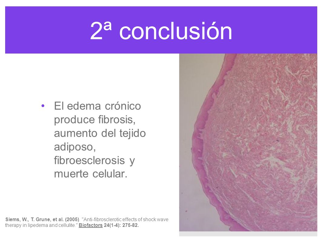 2ª conclusión El edema crónico produce fibrosis, aumento del tejido adiposo, fibroesclerosis y muerte celular.