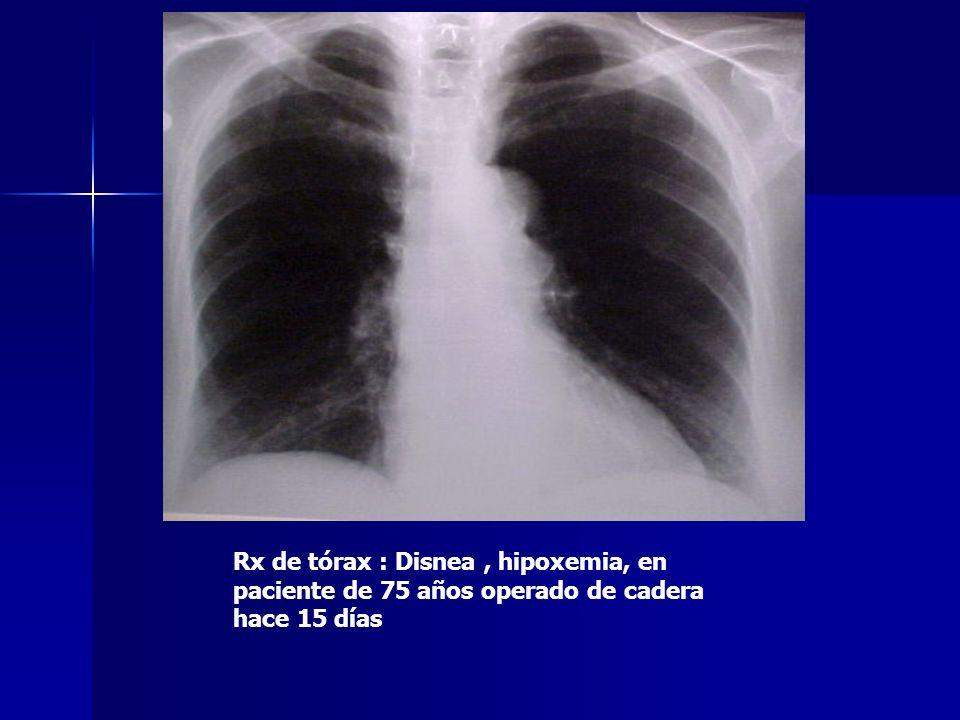 Rx de tórax : Disnea , hipoxemia, en paciente de 75 años operado de cadera hace 15 días