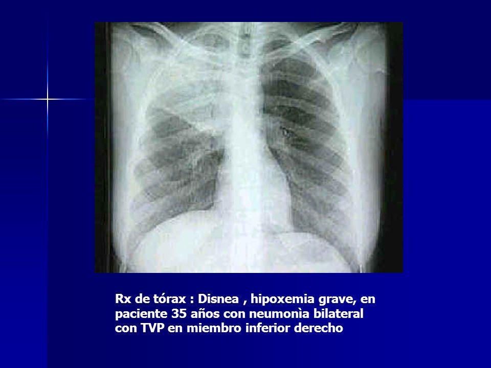 Rx de tórax : Disnea , hipoxemia grave, en paciente 35 años con neumonìa bilateral con TVP en miembro inferior derecho