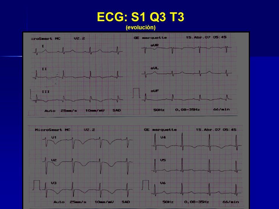 ECG: S1 Q3 T3 (evoluciòn)