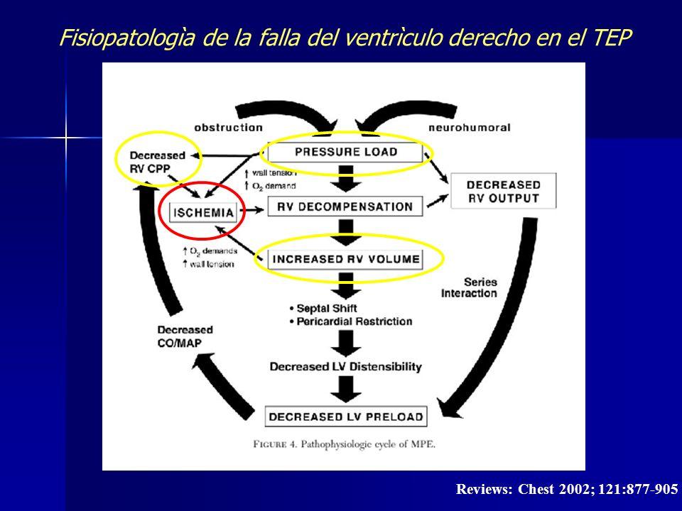 Fisiopatologìa de la falla del ventrìculo derecho en el TEP