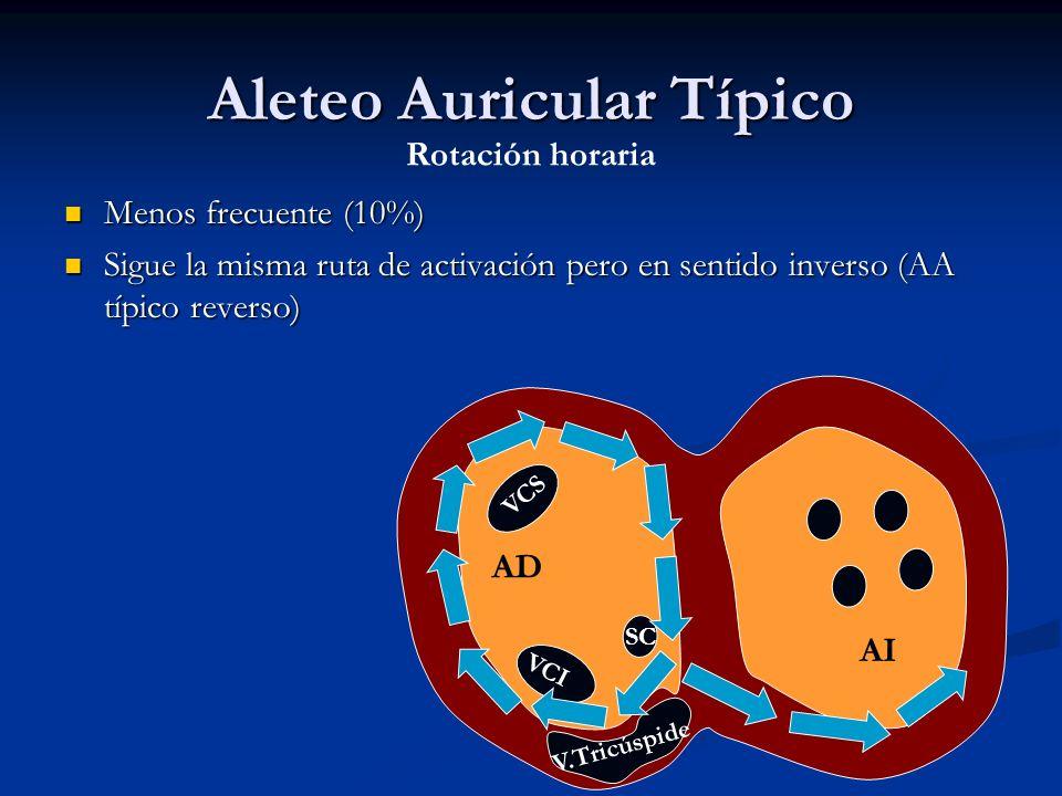 Aleteo Auricular Típico
