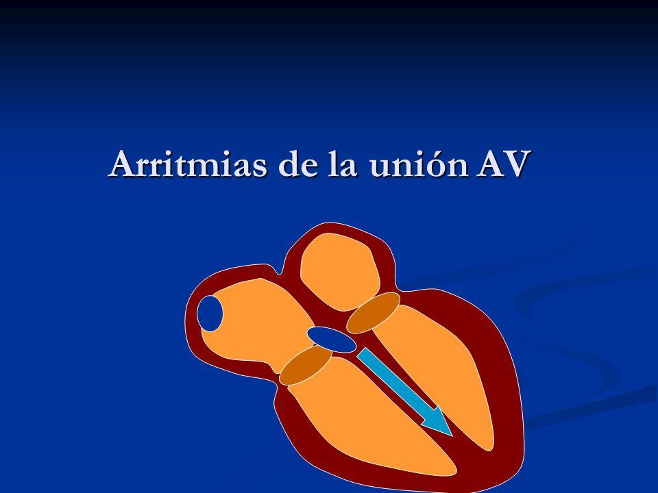 Arritmias de la unión AV