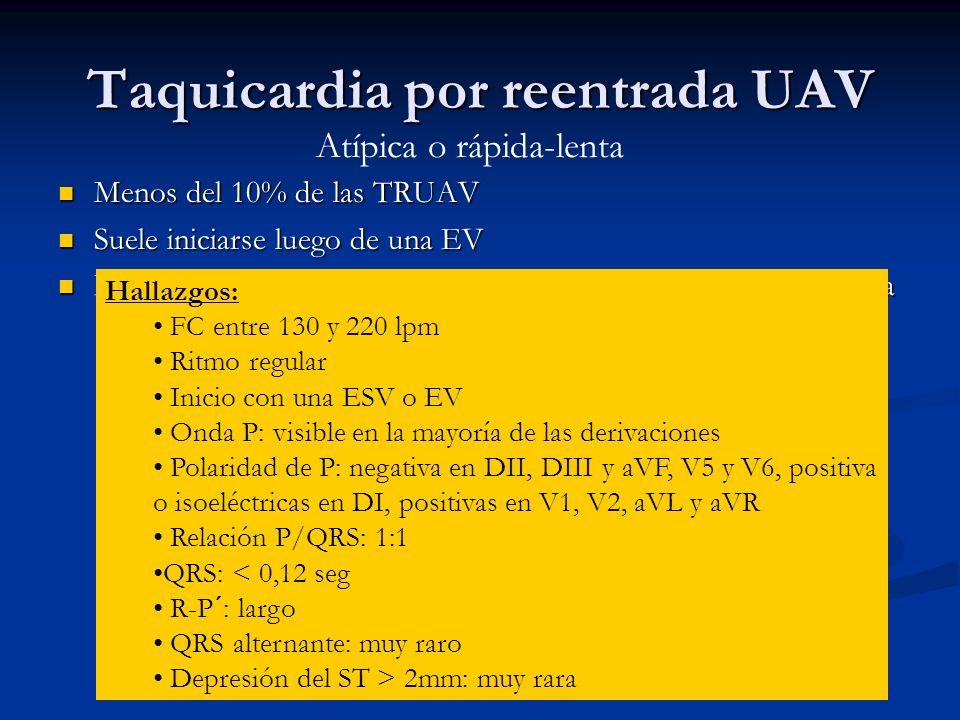 Taquicardia por reentrada UAV