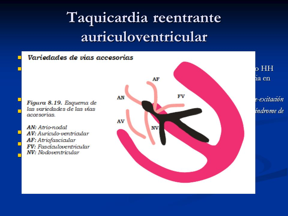 Taquicardia reentrante auriculoventricular