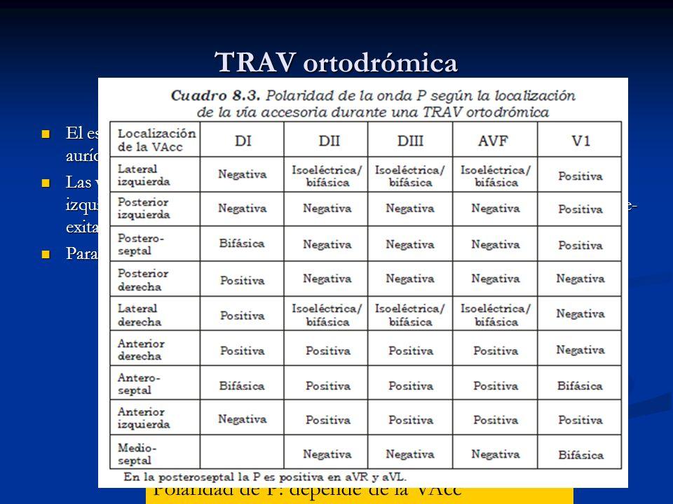 TRAV ortodrómica Hallazgos: FC: 160-250 lpm Ritmo: regular