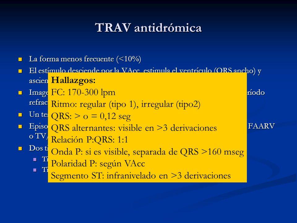 TRAV antidrómica Hallazgos: FC: 170-300 lpm