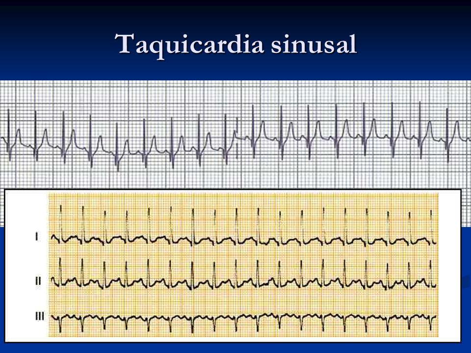 Taquicardia sinusal Es el resultado de la respuesta a la estimulación simpática o a la depresión de la actividad vagal, con mayor automatismo del NS.