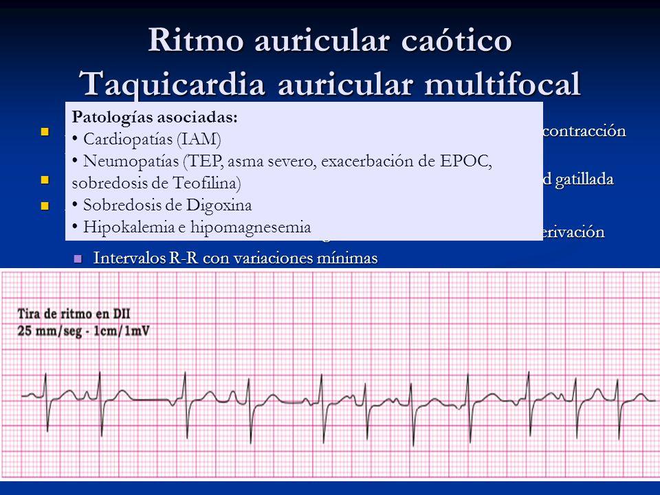 Ritmo auricular caótico Taquicardia auricular multifocal