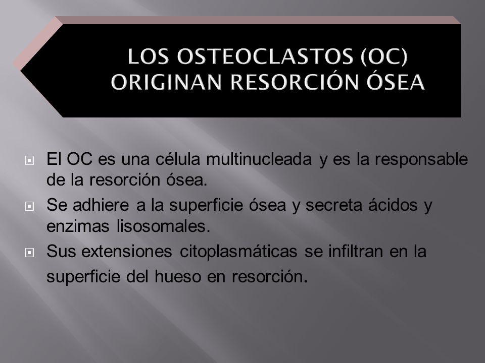 LOS OSTEOCLASTOS (OC) ORIGINAN RESORCIÓN ÓSEA