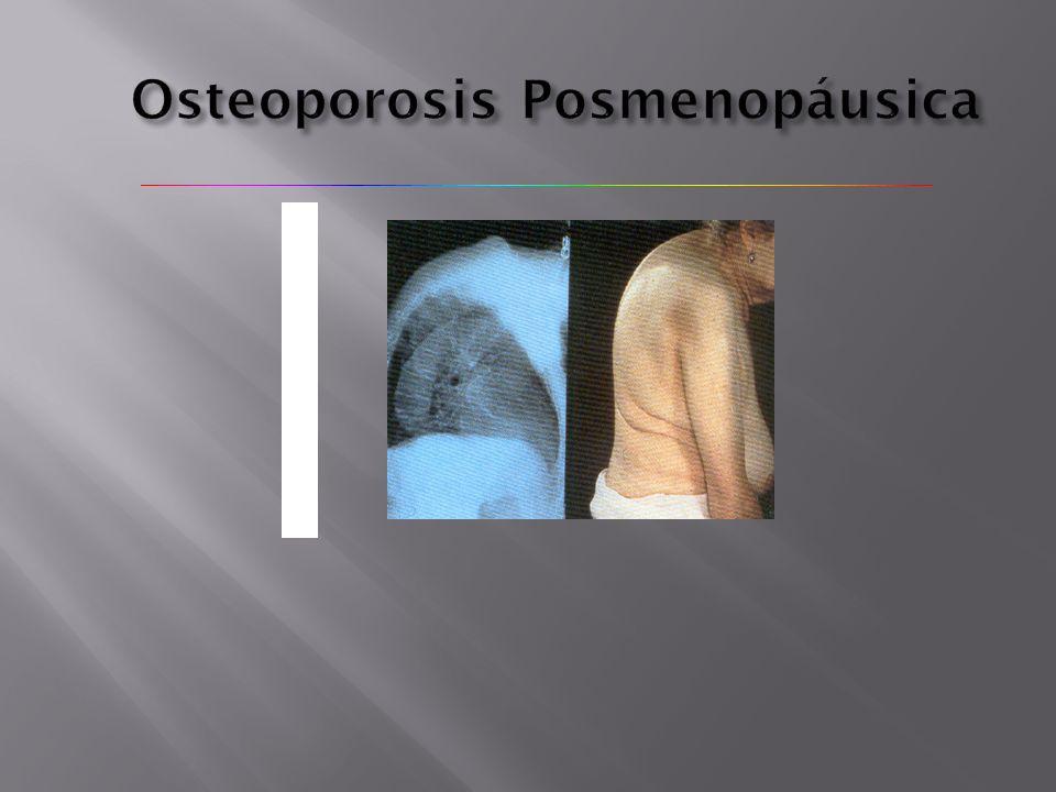Osteoporosis Posmenopáusica