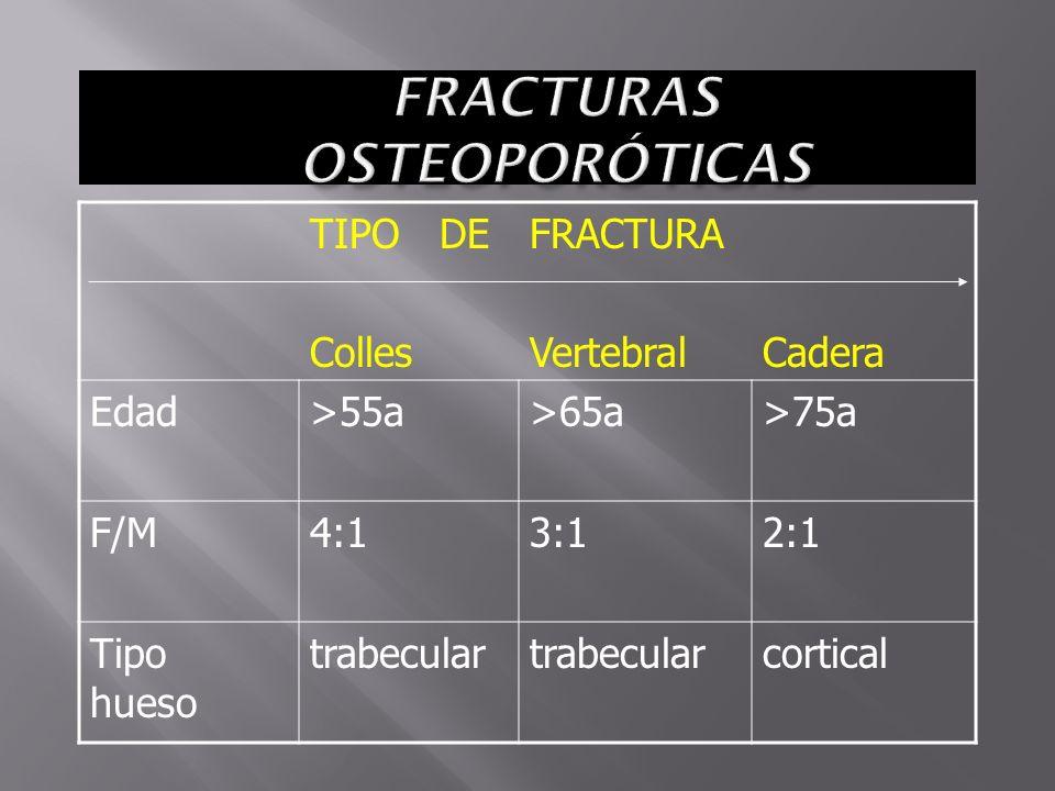FRACTURAS OSTEOPORÓTICAS