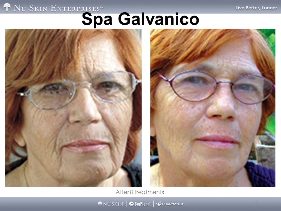 Spa Galvanico After 8 treatments