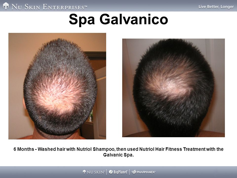Spa Galvanico 6 Months - Washed hair with Nutriol Shampoo, then used Nutriol Hair Fitness Treatment with the Galvanic Spa.