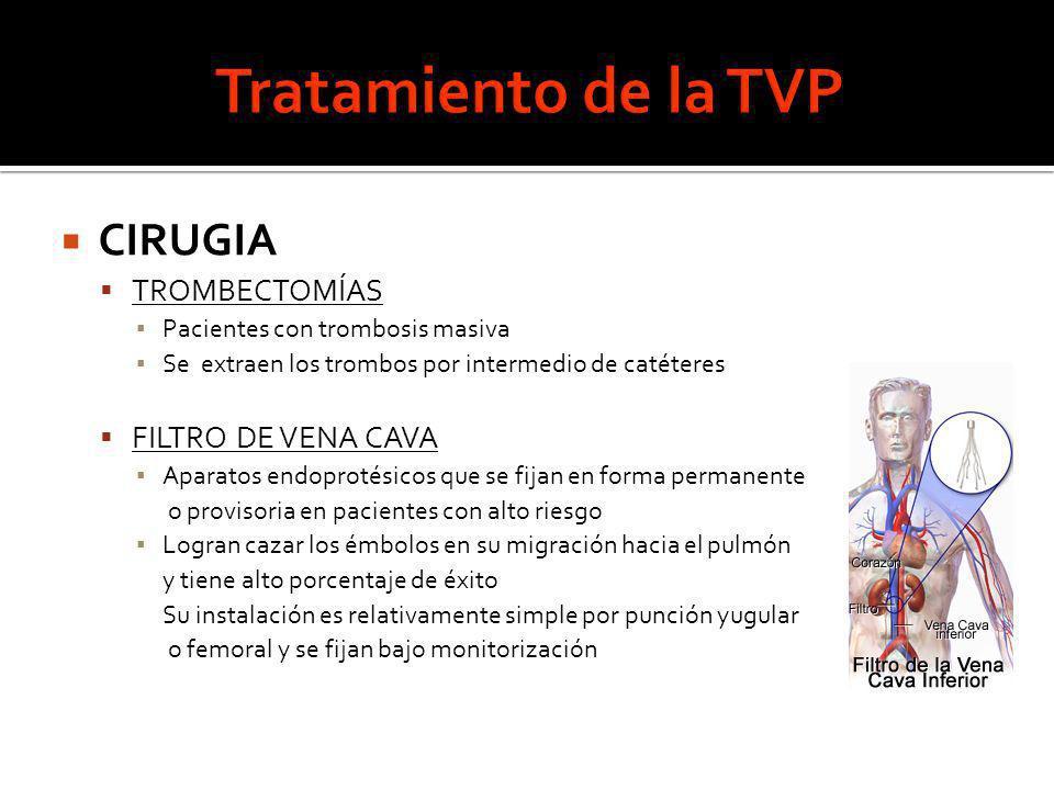 Tratamiento de la TVP CIRUGIA TROMBECTOMÍAS FILTRO DE VENA CAVA