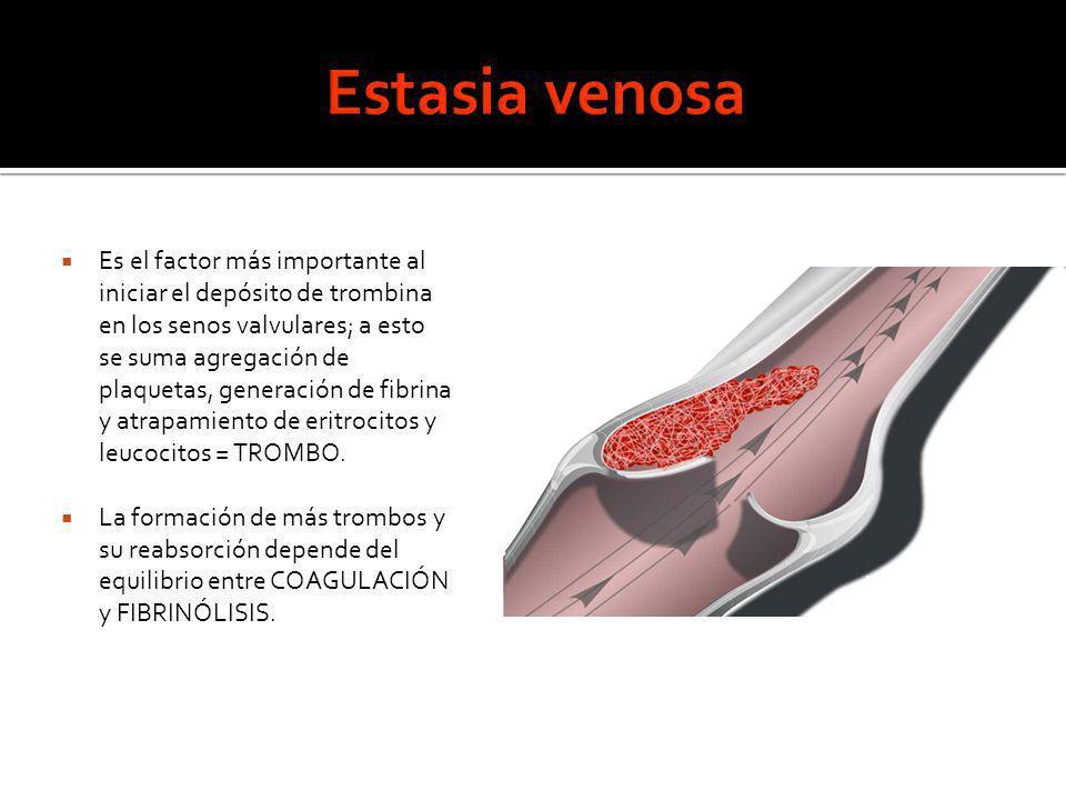 Estasia venosa