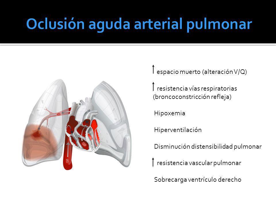 Oclusión aguda arterial pulmonar