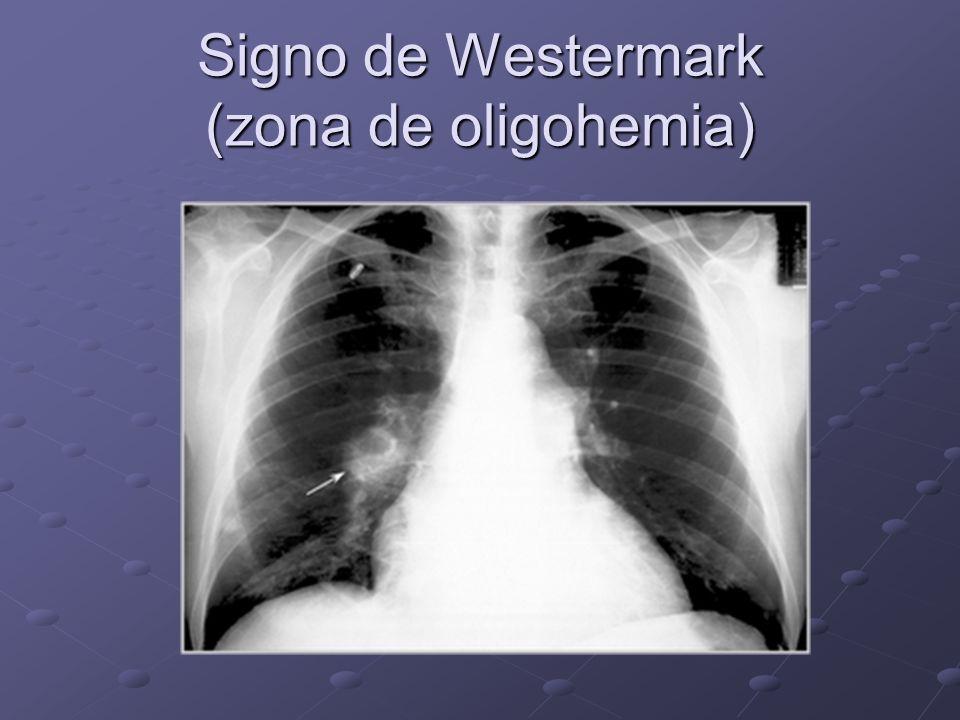 Signo de Westermark (zona de oligohemia)