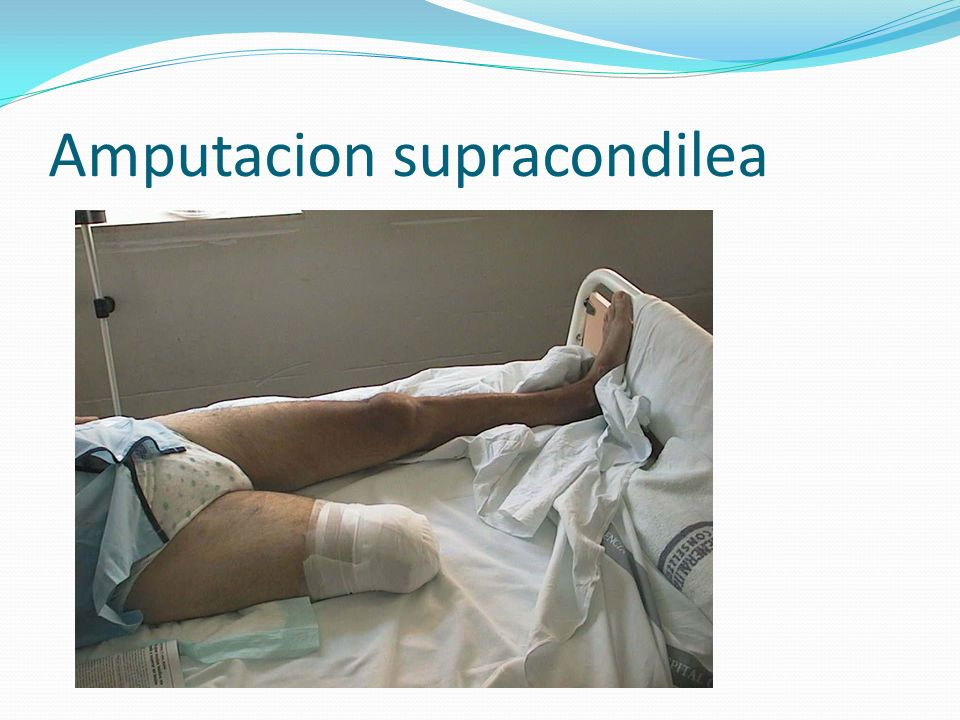 Amputacion supracondilea