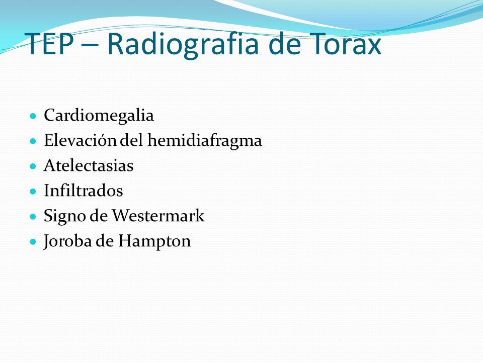 TEP – Radiografia de Torax