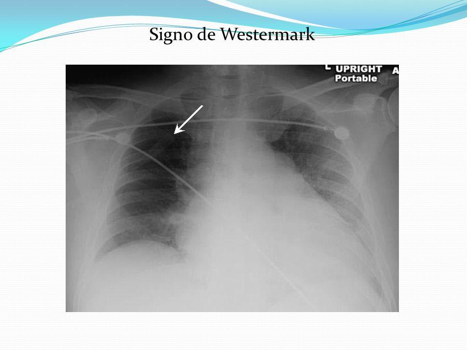 Signo de Westermark