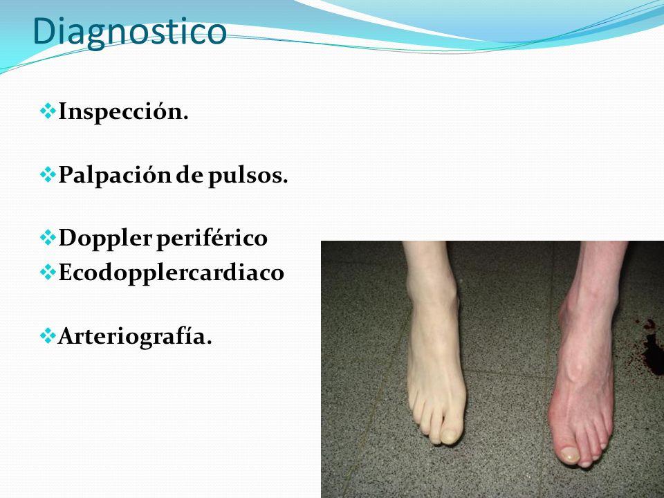 Diagnostico Inspección. Palpación de pulsos. Doppler periférico